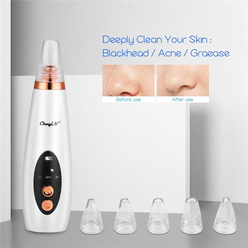 6 In 1 Electric Blackhead Remover Kit Professional Face Deep Pore Cleaner Acne Pimple Removal Vacuum Suction Face Skin Care Tool
